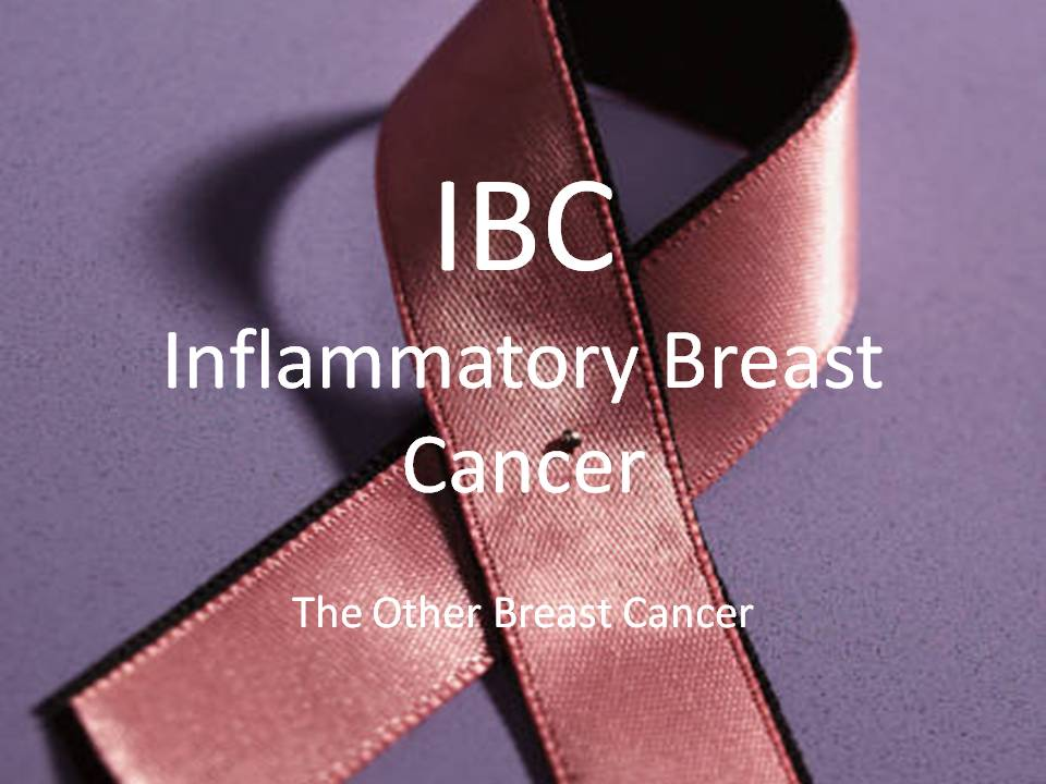 Breast cancer ibc